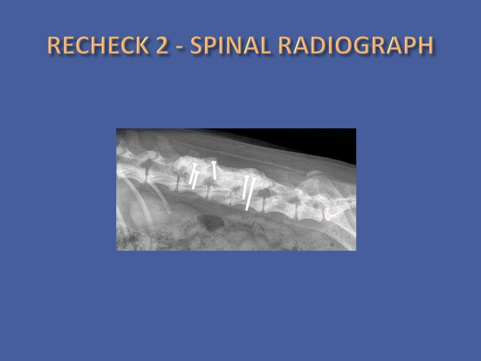 RECHECK 2 - SPINAL RADIOGRAPH
