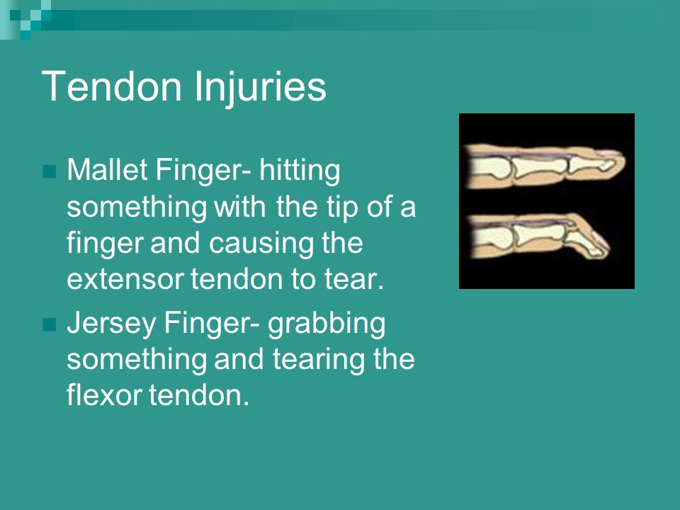 Tendon Injuries Mallet Finger- hitting something with the tip of a finger and causing the extensor tendon to tear.
