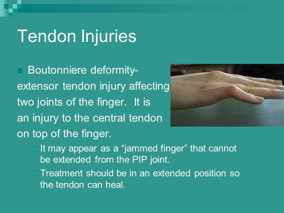 Tendon Injuries Boutonniere deformity-
