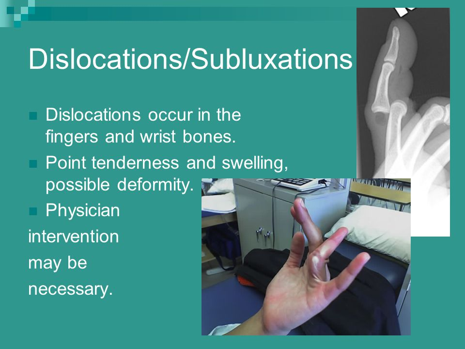 Dislocations/Subluxations