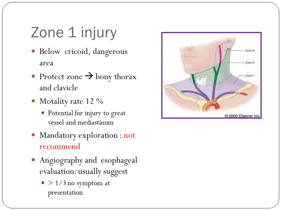 Zone 1 injury Below cricoid, dangerous area