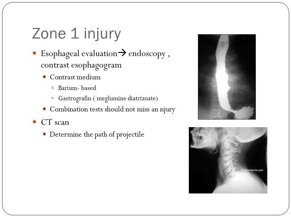 Zone 1 injury Esophageal evaluation endoscopy , contrast esophagogram