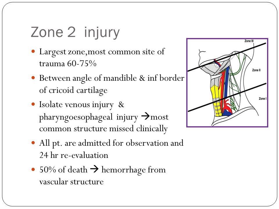 Zone 2 injury Largest zone,most common site of trauma 60-75%
