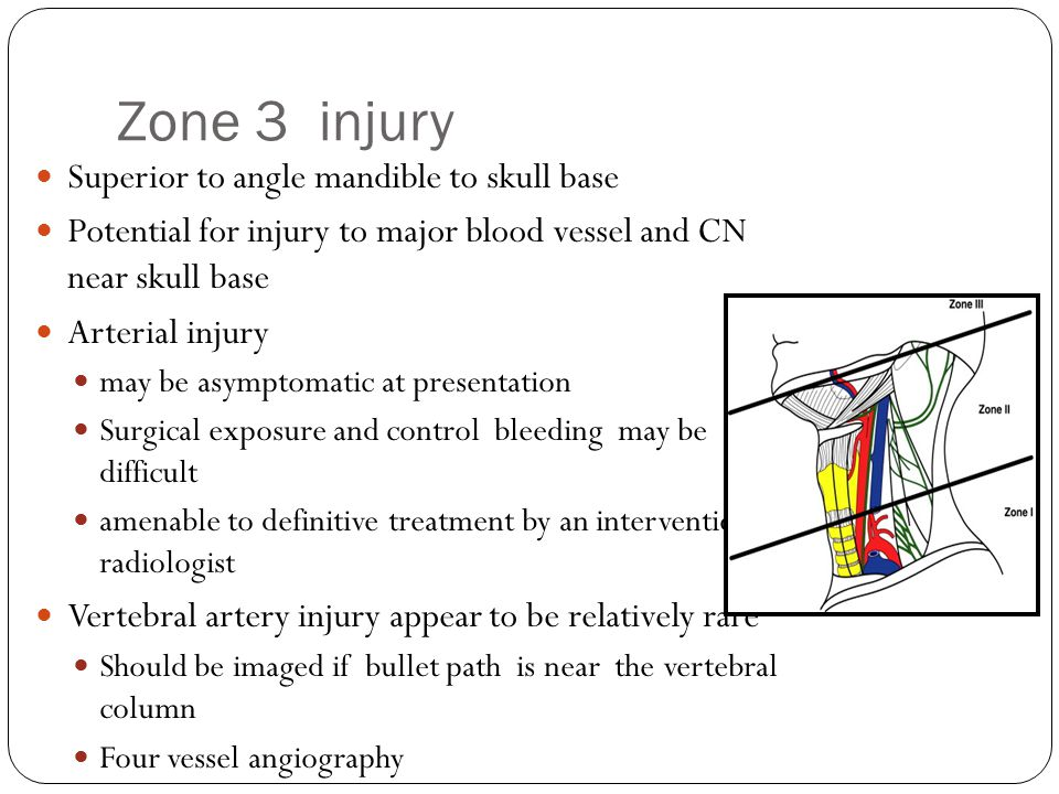 Zone 3 injury Superior to angle mandible to skull base