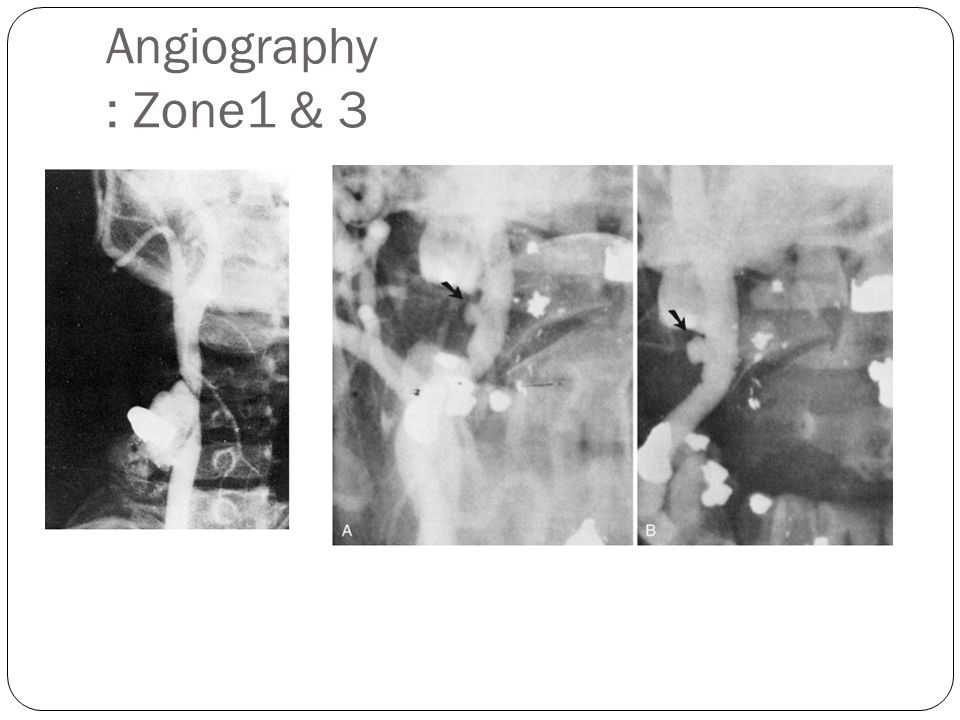 Angiography : Zone1 & 3 1Arteriogram demonstrating common carotid artery injury with small hematoma.