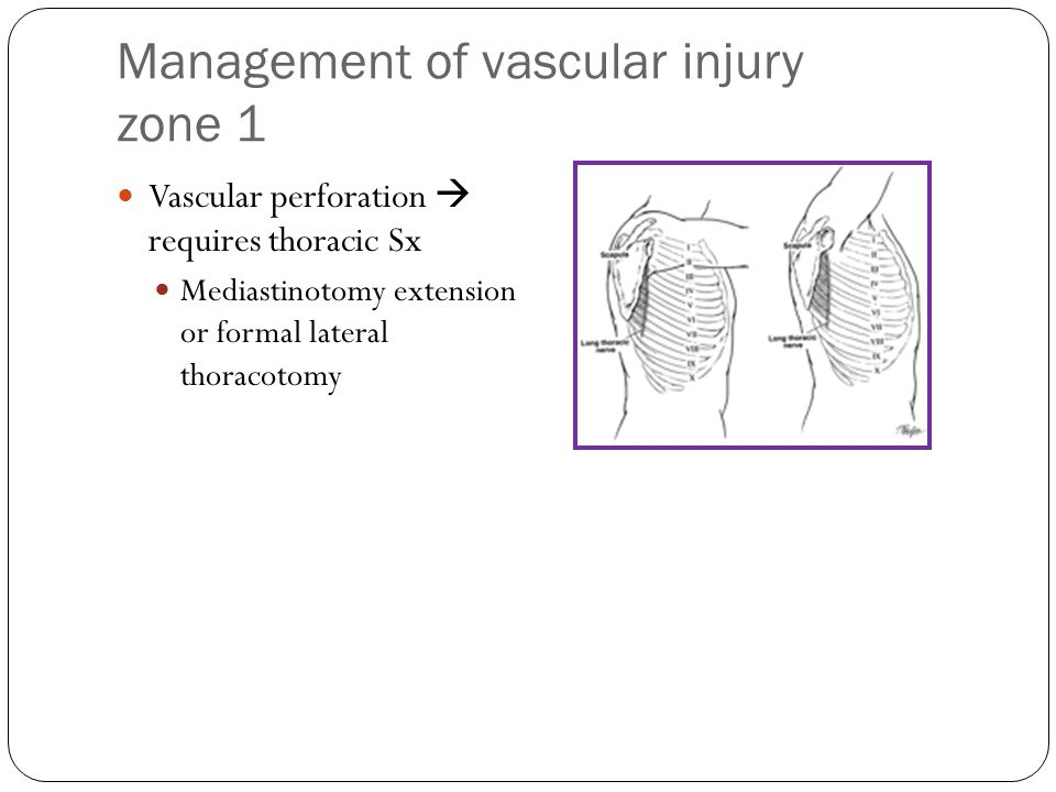 Management of vascular injury zone 1