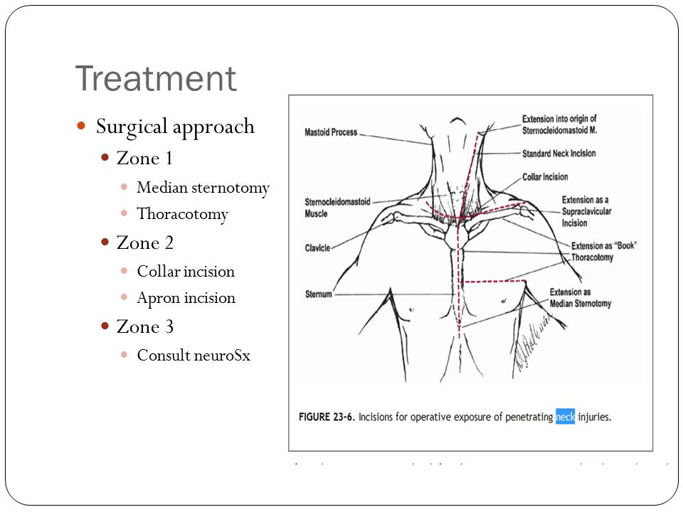 Treatment Surgical approach Zone 1 Zone 2 Zone 3 Median sternotomy