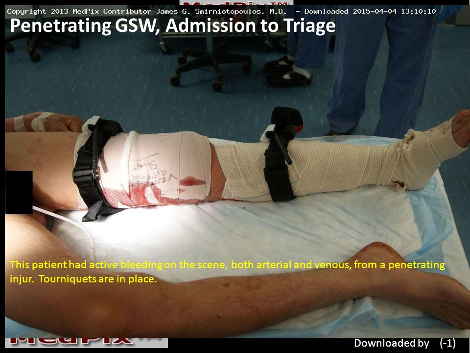 Penetrating GSW, Admission to Triage