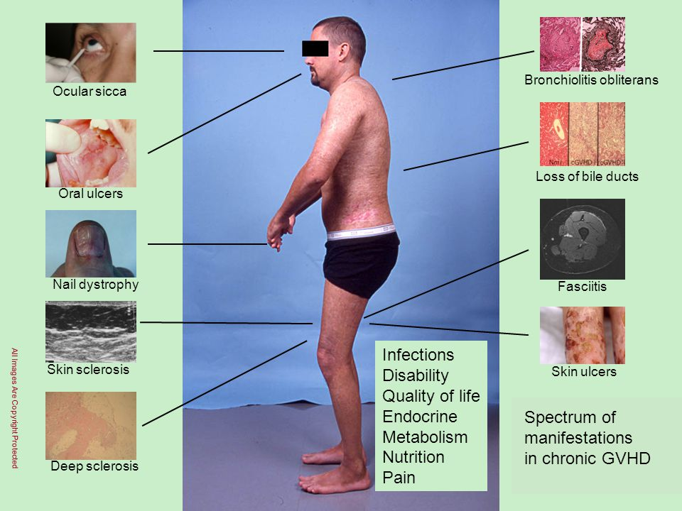 Infections Disability Quality of life Endocrine Metabolism Nutrition