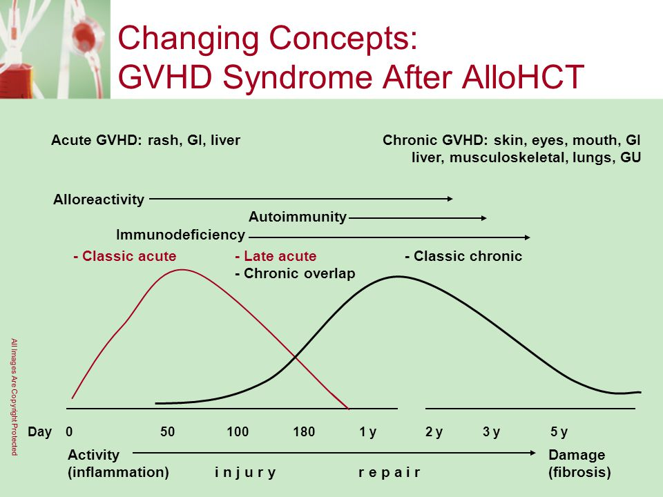 Changing Concepts: GVHD Syndrome After AlloHCT