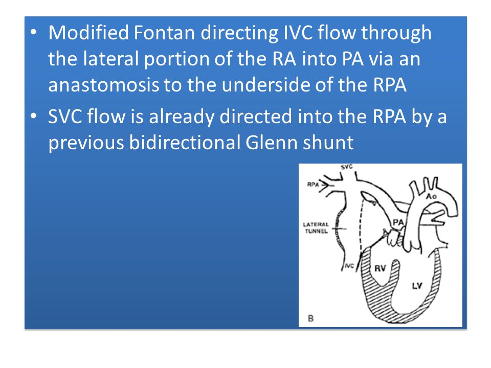 Modified Fontan directing IVC flow through the lateral portion of the RA into PA via an anastomosis to the underside of the RPA