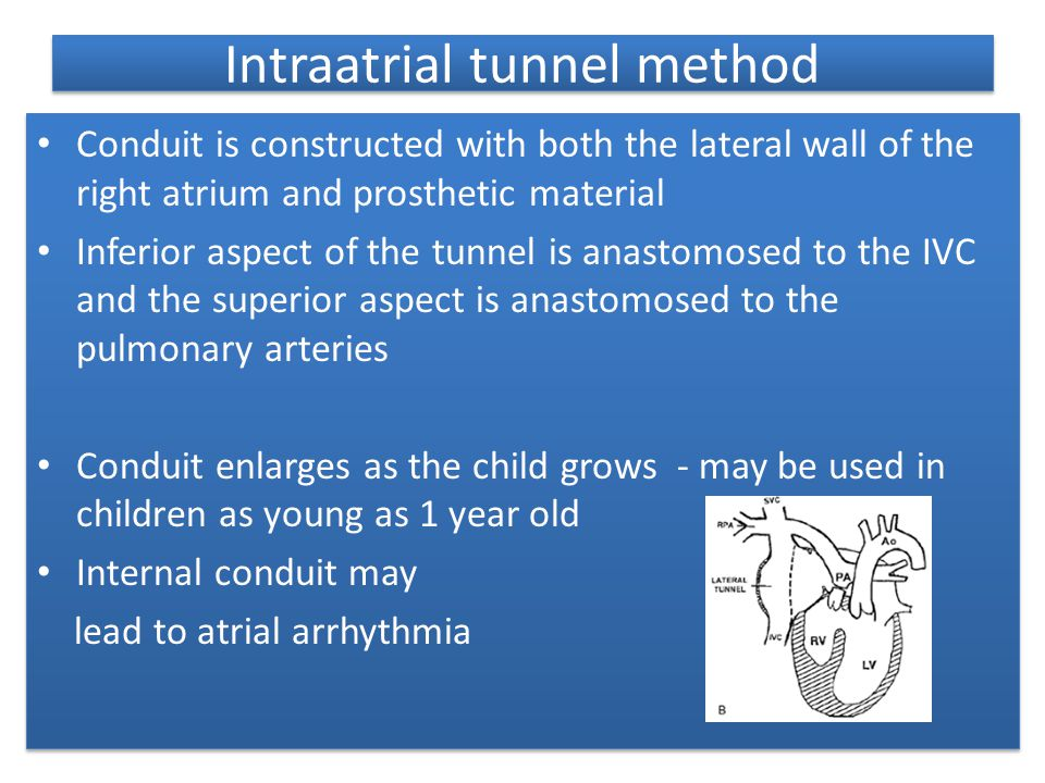 Intraatrial tunnel method