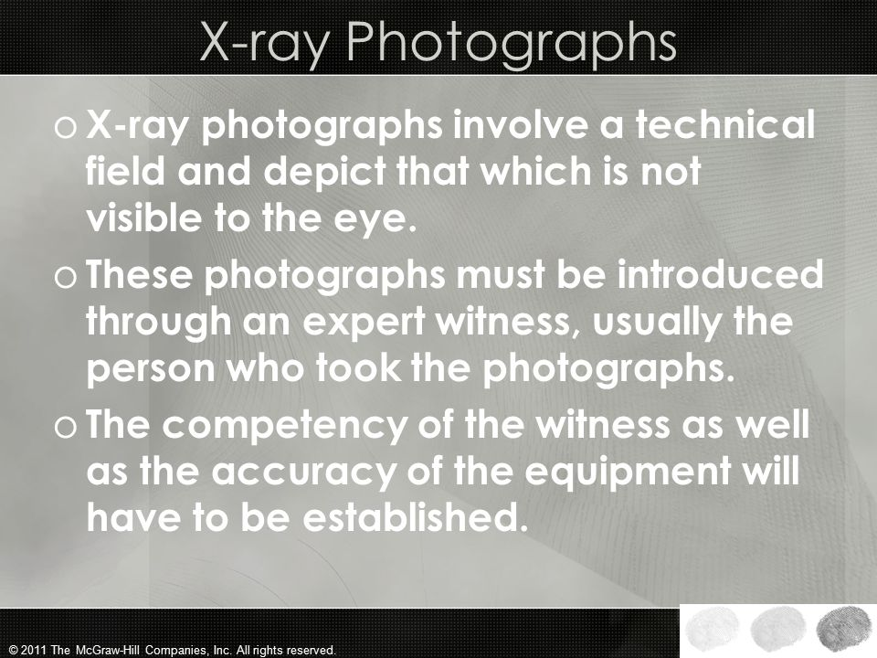 X-ray Photographs X-ray photographs involve a technical field and depict that which is not visible to the eye.