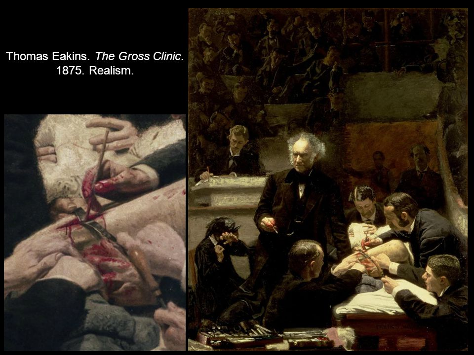 Thomas Eakins. The Gross Clinic. 1875. Realism.