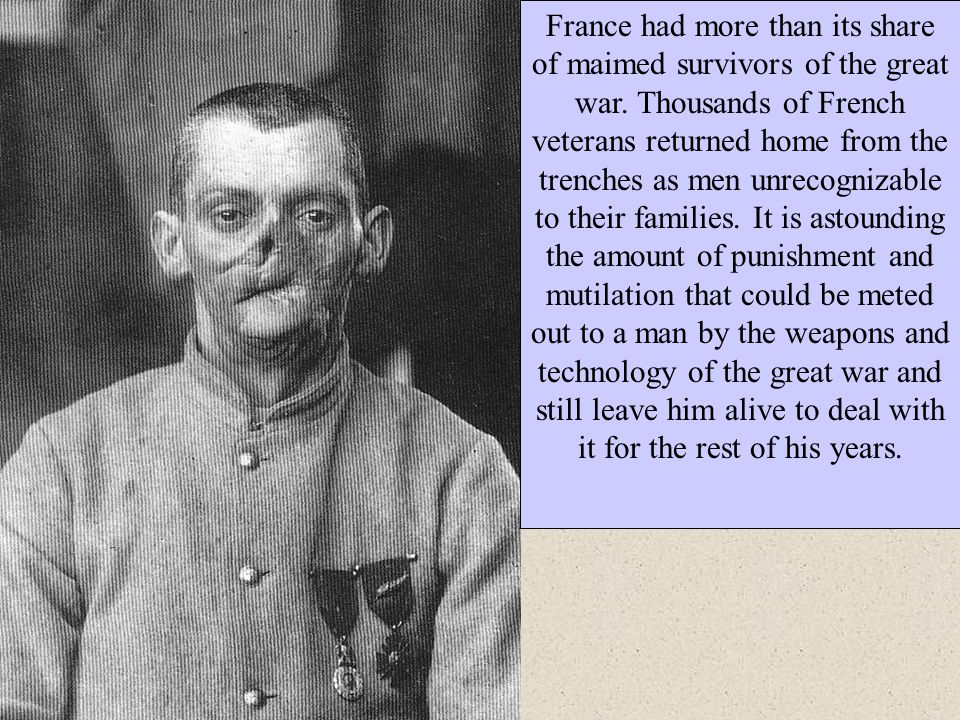 France had more than its share of maimed survivors of the great war