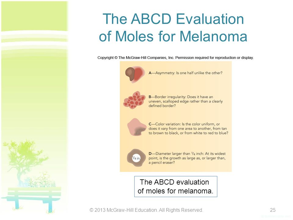 The ABCD Evaluation of Moles for Melanoma