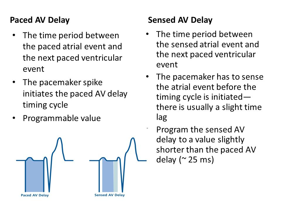 The pacemaker spike initiates the paced AV delay timing cycle