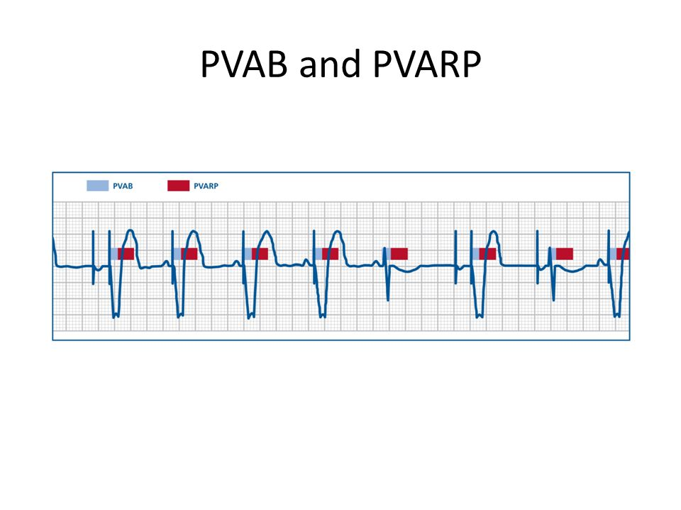 PVAB and PVARP Point out: