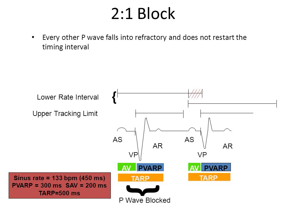 2:1 Block Every other P wave falls into refractory and does not restart the timing interval. { Lower Rate Interval.