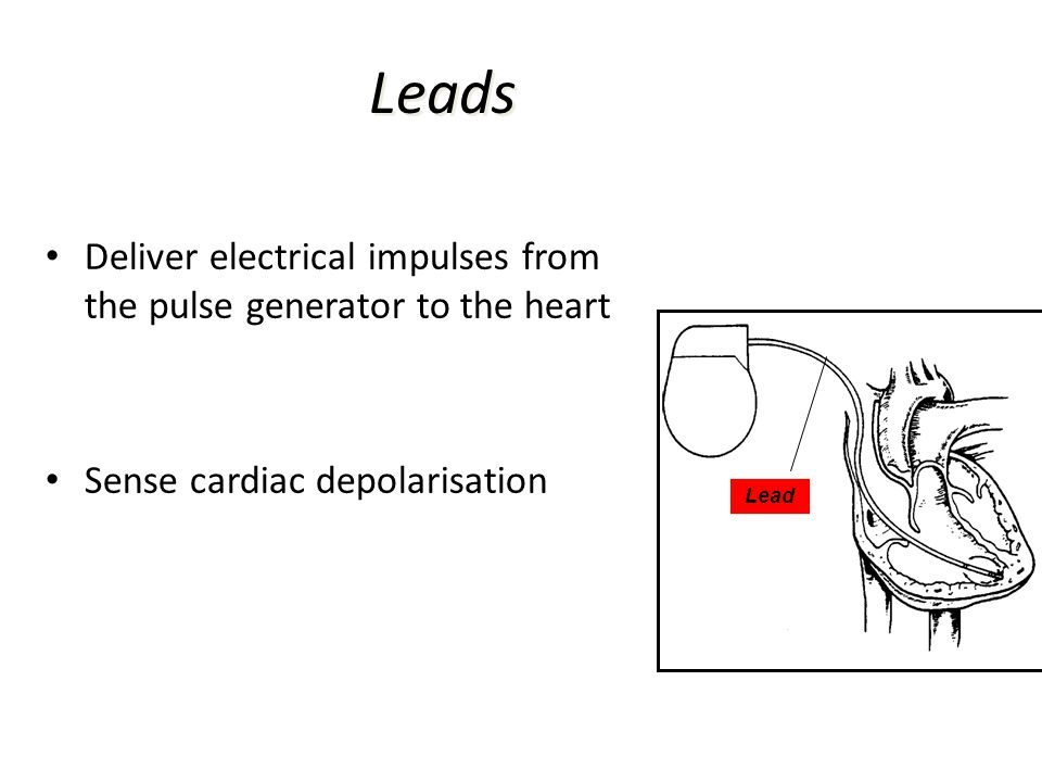 Leads Deliver electrical impulses from the pulse generator to the heart. Sense cardiac depolarisation.