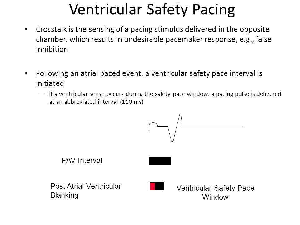 Ventricular Safety Pacing