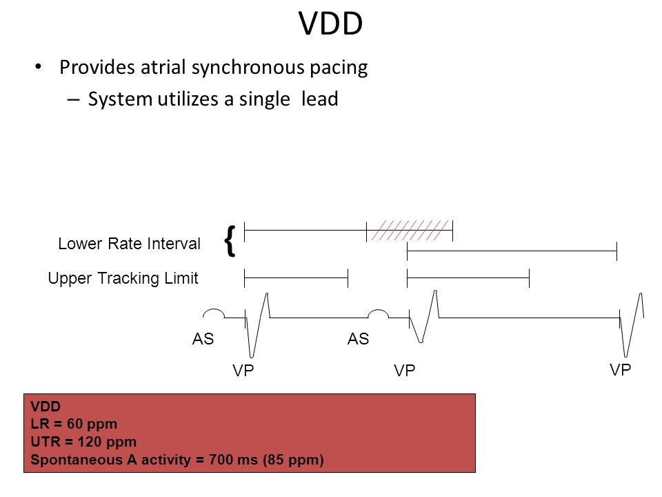 VDD { Provides atrial synchronous pacing System utilizes a single lead