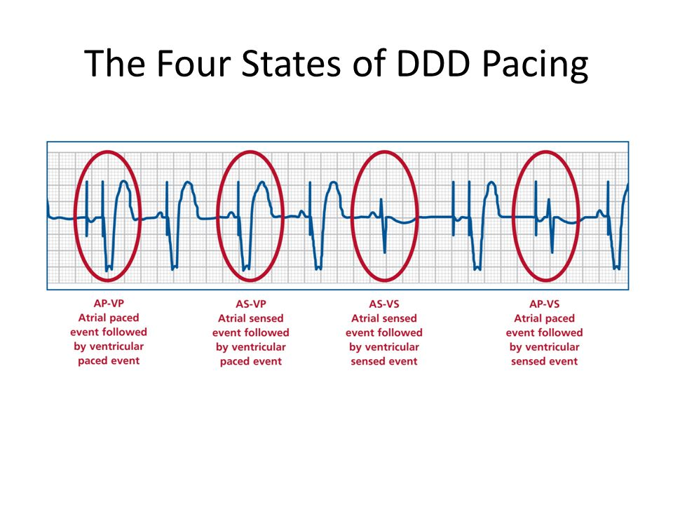 The Four States of DDD Pacing