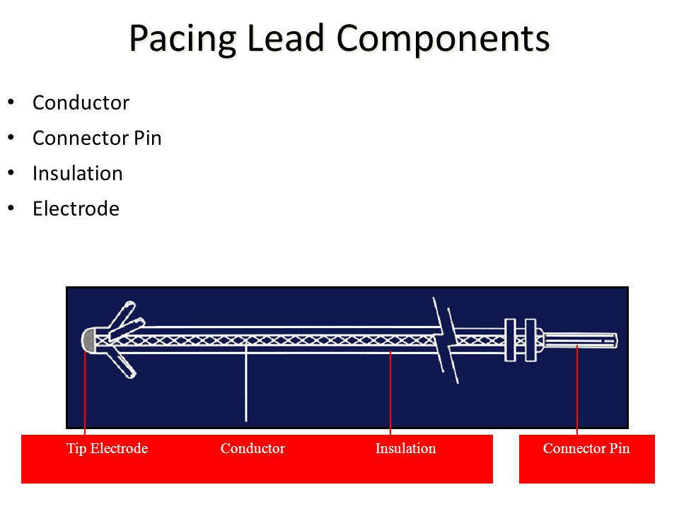 Pacing Lead Components