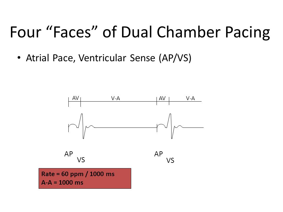 Four Faces of Dual Chamber Pacing