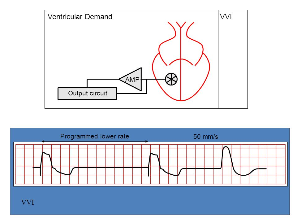VVI Ventricular Demand VVI Output circuit AMP Programmed lower rate