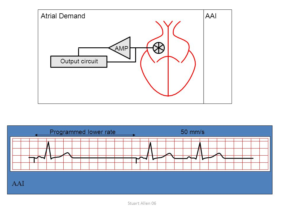 AAI Atrial Demand AAI Output circuit AMP Programmed lower rate 50 mm/s