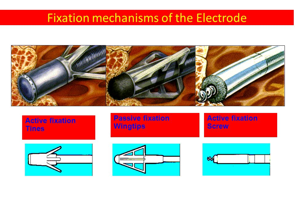 Fixation mechanisms of the Electrode