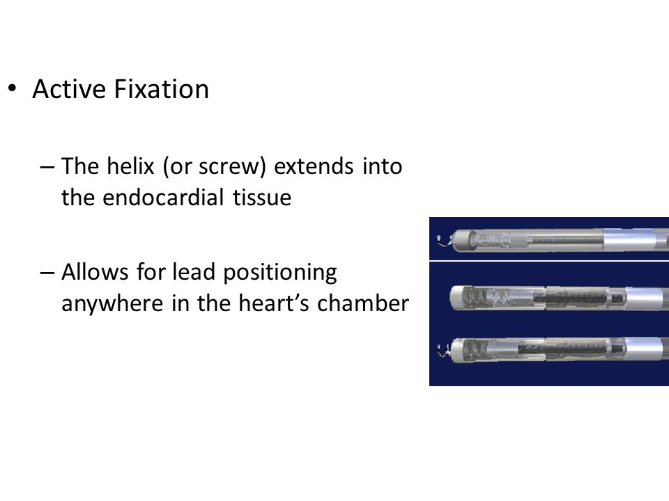 Active Fixation The helix (or screw) extends into the endocardial tissue. Allows for lead positioning anywhere in the heart's chamber.