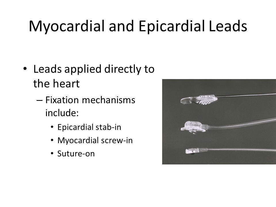 Myocardial and Epicardial Leads