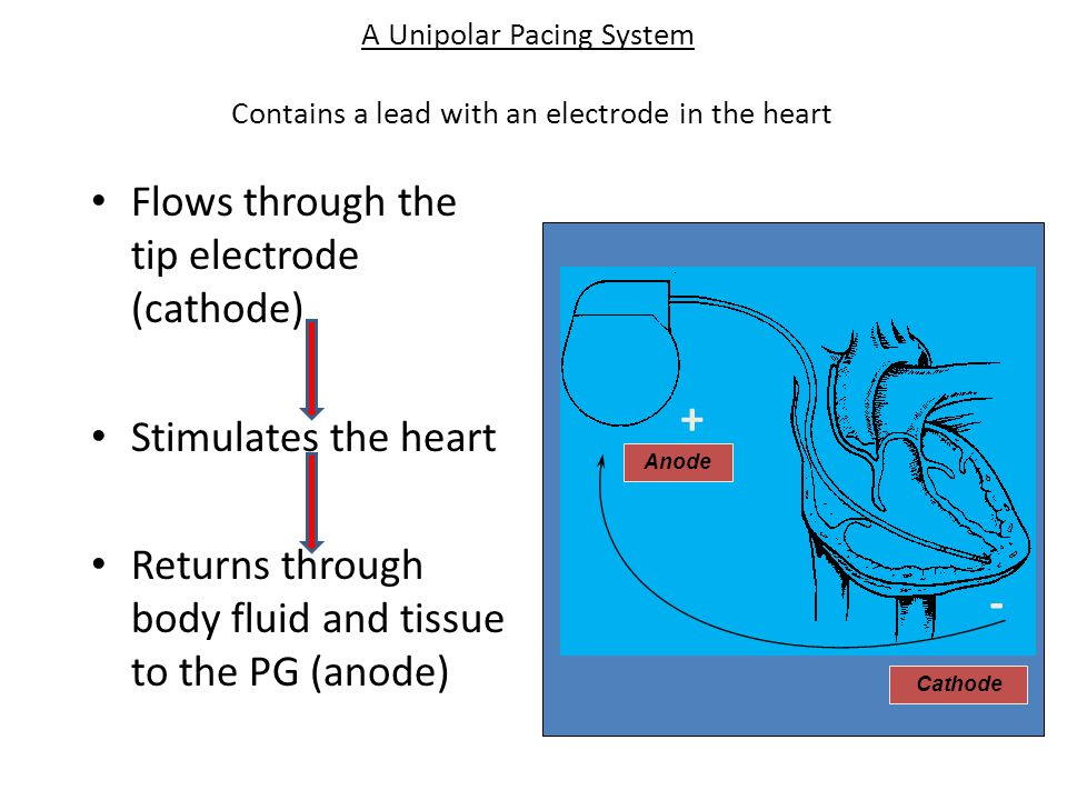 + - Flows through the tip electrode (cathode) Stimulates the heart