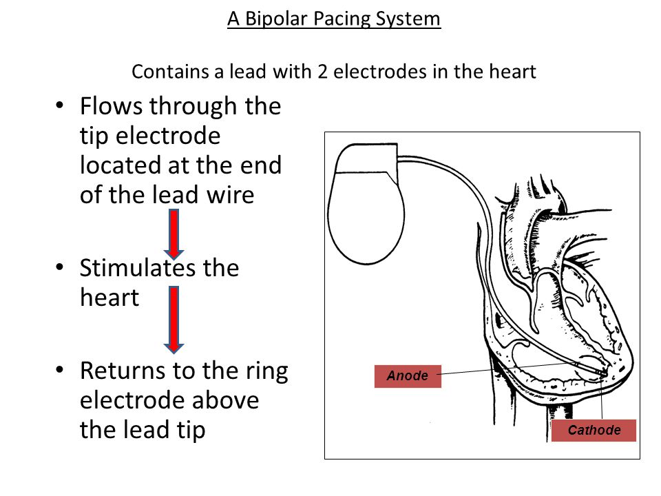 A Bipolar Pacing System Contains a lead with 2 electrodes in the heart