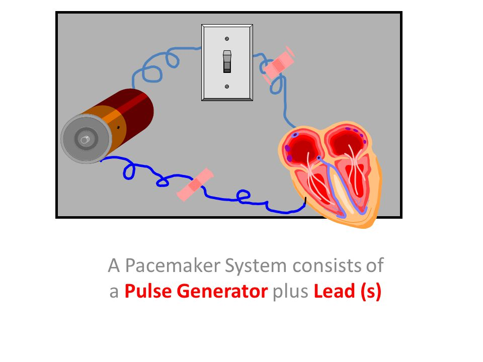 A Pacemaker System consists of a Pulse Generator plus Lead (s)