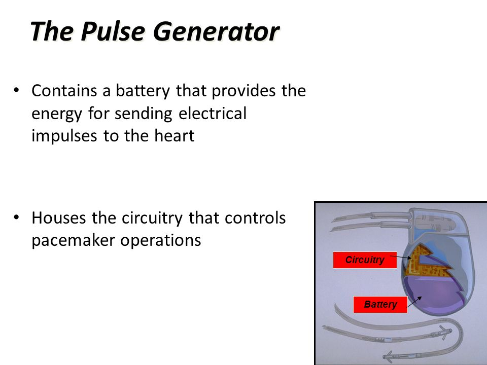 The Pulse Generator Contains a battery that provides the energy for sending electrical impulses to the heart.