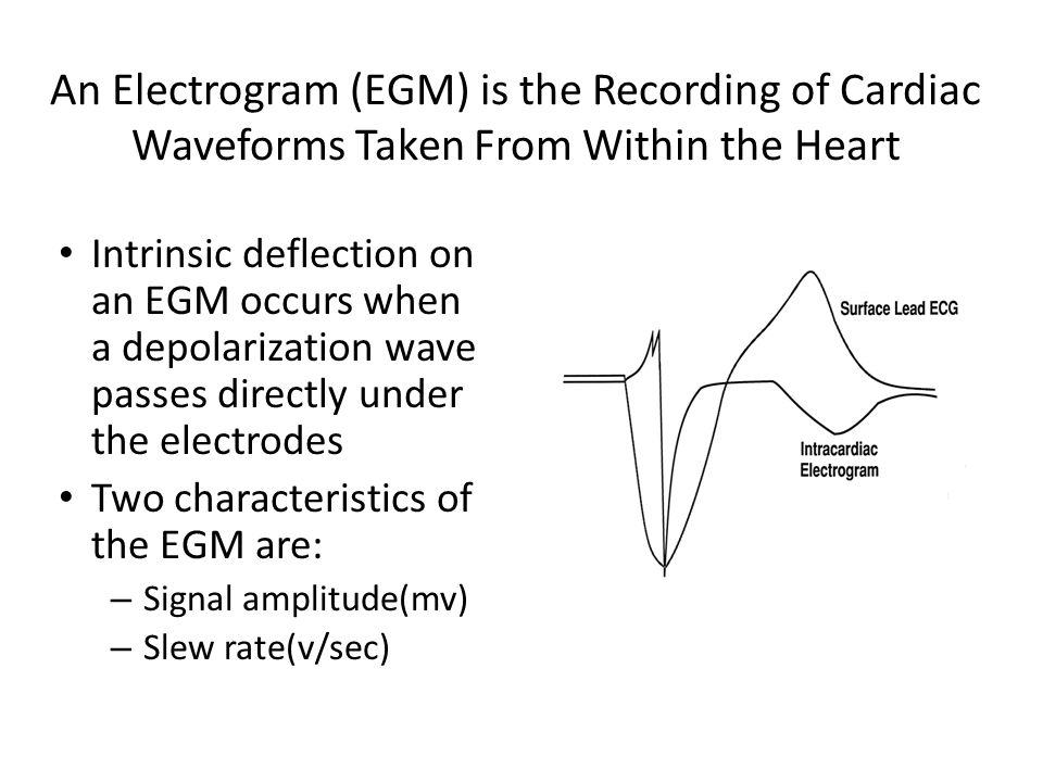 An Electrogram (EGM) is the Recording of Cardiac Waveforms Taken From Within the Heart