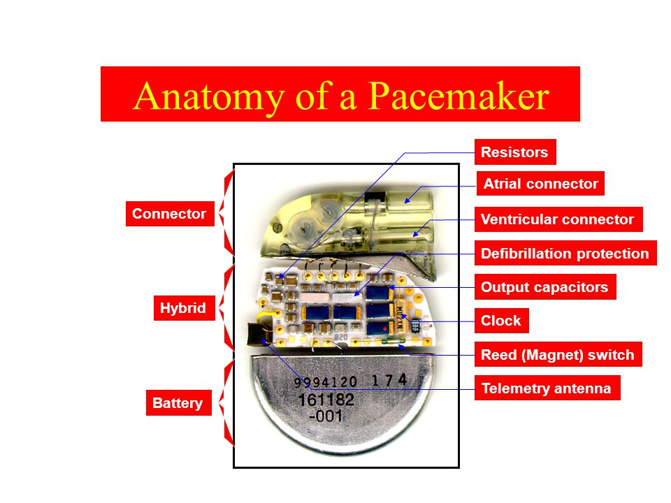 Anatomy of a Pacemaker Resistors Atrial connector Connector