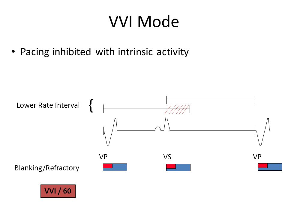 VVI Mode { Pacing inhibited with intrinsic activity