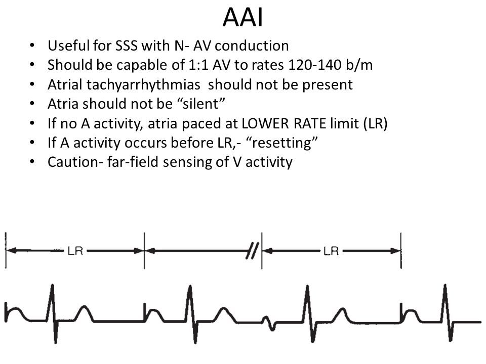 AAI Useful for SSS with N- AV conduction