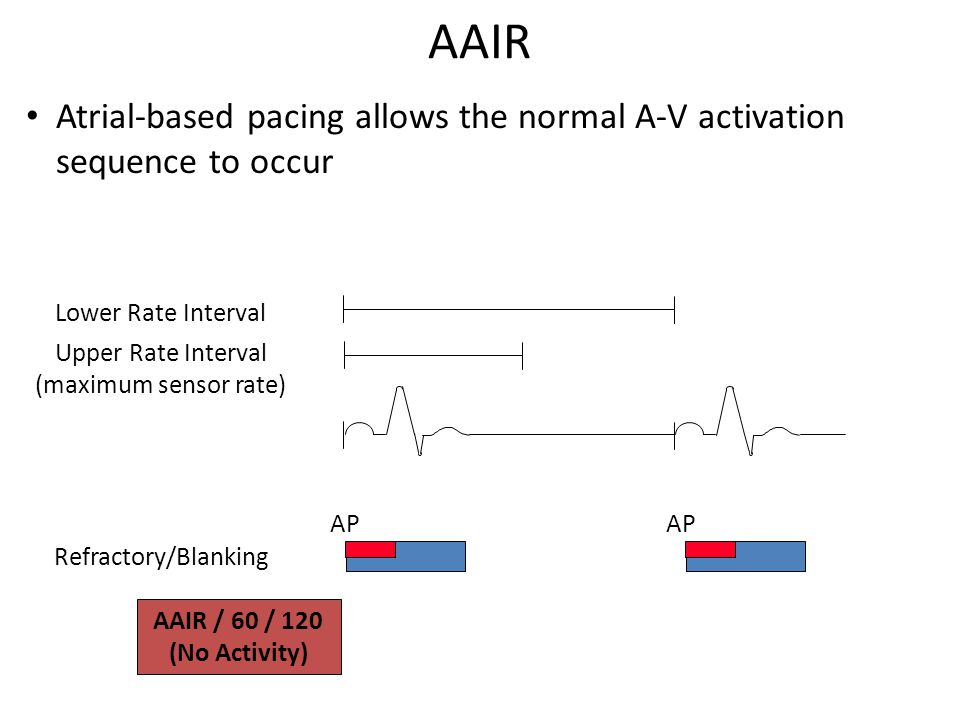 AAIR Atrial-based pacing allows the normal A-V activation sequence to occur. Lower Rate Interval. Upper Rate Interval.