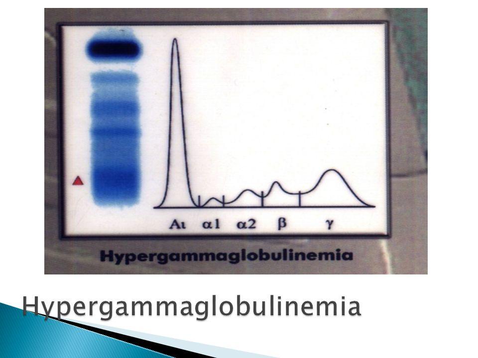 Hypergammaglobulinemia