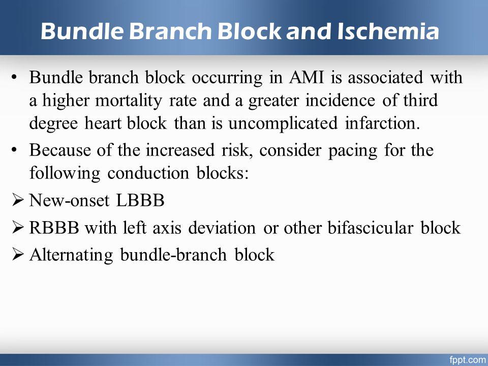 Bundle Branch Block and Ischemia