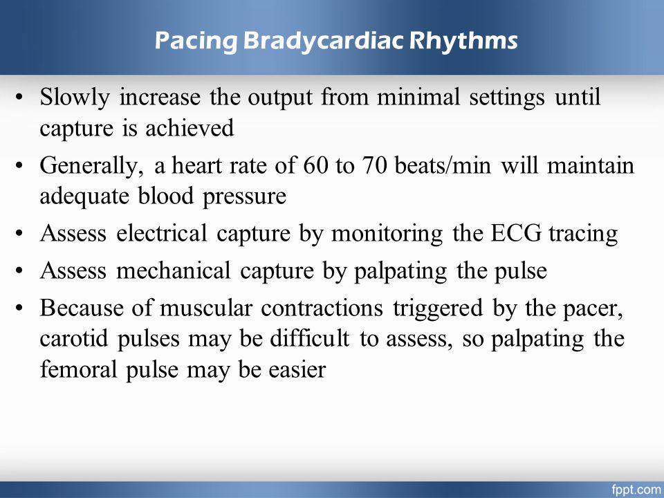 Pacing Bradycardiac Rhythms