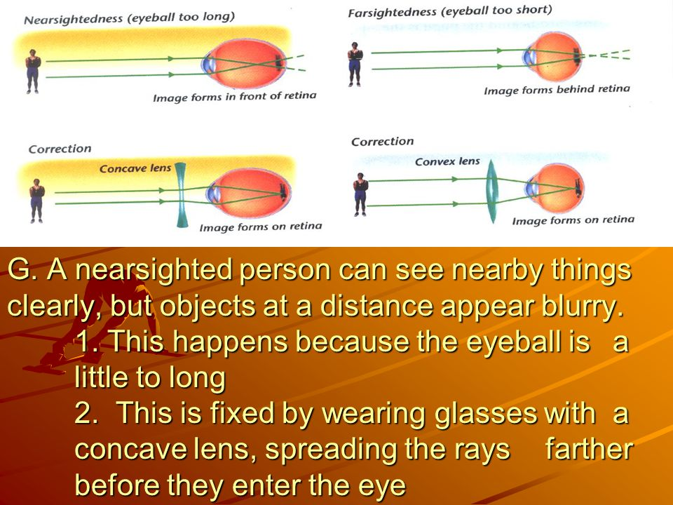 G. A nearsighted person can see nearby things clearly, but objects at a distance appear blurry.