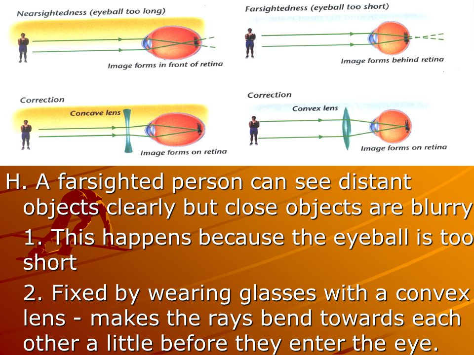 H. A farsighted person can see distant objects clearly but close objects are blurry.