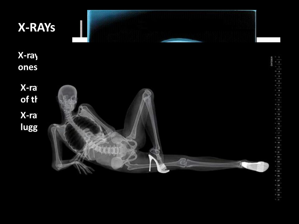 X-RAYs X-rays can travel through soft substances but not hard, dense ones. They travel through soft tissue, but not hard bone.