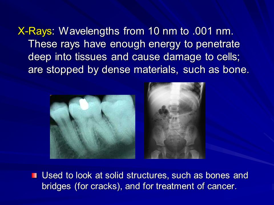 X-Rays: Wavelengths from 10 nm to. 001 nm